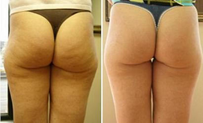 cellulite before-after